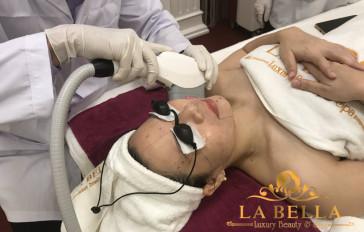 Chị khách sử dụng dịch vụ HIFU nâng cơ trẻ hoá toàn mặt cùng chuyên gia La Bella