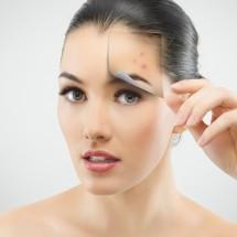 Công nghệ Bio-Endymed đặc trị sẹo lồi - sẹo lõm