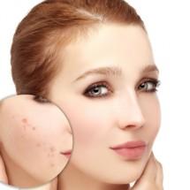 Điều trị mụn bọc - viêm công nghệ Bio-Acne